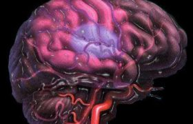 Склероз сосудов головного мозга можно предупредить