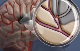 10% людей переносят микроинсульт, даже не подозревая об этом