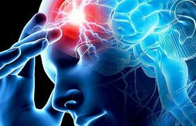 Риск возникновения инсульта среди молодежи возрастает из-за употребления метамфетаминов