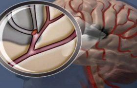 Кислородная терапия не поможет в лечении инсульта
