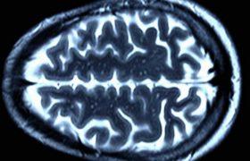 Ученые скрыли смерть пациента с «оживленным» мозгом