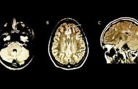 МРТ выявит у ребенка рассеянный склероз за годы до первых симптомов