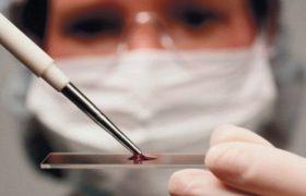 Ученые связали группу крови и проблемы с мозгом