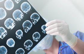 Что нужно знать об инсульте