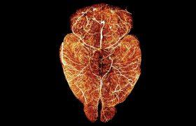 Мозг сделали прозрачным, чтобы больше узнать об инсульте