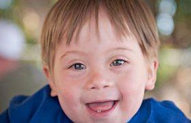 Выявление признаков синдрома Дауна до родов и после