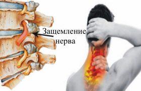 Как лечить защемление нерва