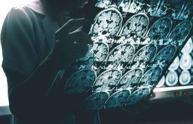Предложена новая гипотеза возникновения болезни Альцгеймера