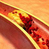 Негативная роль холестерина при рассеянном склерозе