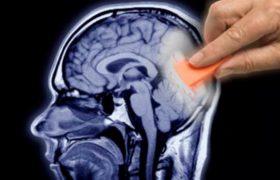 «Тихие» судороги являются первым признаком болезни Альцгеймера