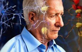 Учёные: Физическая активность снижает риск развития болезни Альцгеймера