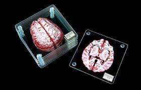 Нейробиологи: нормального мозга не бывает