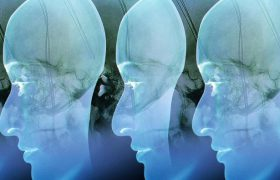 Электроды в мозг: можно ли лечить ожирение так?