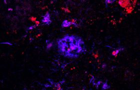 Мишень та же, способ другой: учёные изменили подход к лечению болезни Альцгеймера