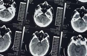 Новая система помогает людям улучшать кратковременную память