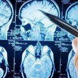 Мозг: структура, функции, болезни