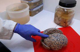 В мозге нашли источник человеческого сознания