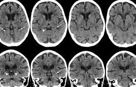 Cвязь между кальцификацией мозга, курением и диабетом