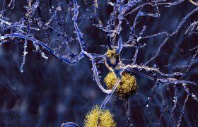 Аспирин замедляет развитие слабоумия