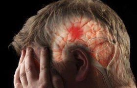 Медики назвали самое простое средство от инсульта