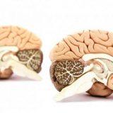 Шизофрения затрагивает связи во всем мозге без исключения