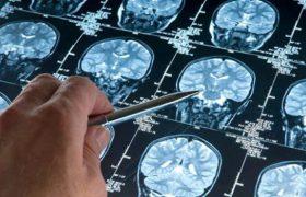 Сотрясения мозга все-таки вызывают болезнь Альцгеймера