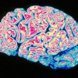 Найдена вызывающая рассеянный склероз молекула