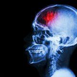 Этот тест на интеллект покажет, выживет ли пациент после инсульта