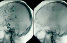 Что происходит с мозгом во время смерти?