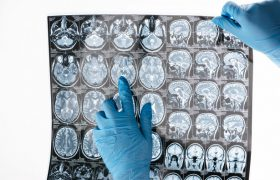 Обнаружен неизведанный участок человеческого мозга
