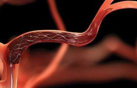 Найдено лекарство от атеросклероза