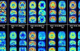 Старческое слабоумие подсветят в мозге на ранней стадии