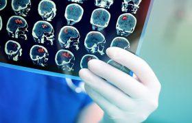 Биологи впервые заразили мышь болезнью Альцгеймера
