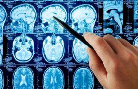 На современную молодежь приходится 15% всех инсультов