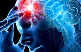 Иммунная реакция после инсульта служит индикатором дальнейшего когнитивного здоровья