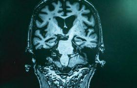 Электричество поможет лечить старческое слабоумие