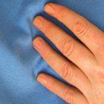 Названы пять главных признаков скорого инсульта