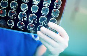 Что делать для профилактики инсульта