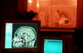 Закончено МРТ-сканирование мозга продолжительностью в 4 дня