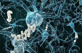 Болезнь Альцгеймера может начинаться в раннем детстве