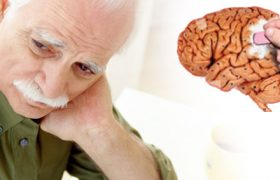 Начальные признаки болезни альцгеймера, которые беспокоят до постановки диагноза