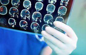 5 способов предотвратить тихий инсульт