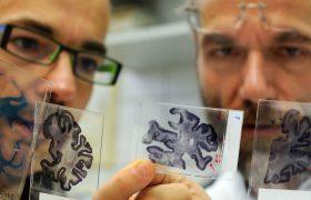 Может ли препарат на основе морских водорослей помочь избавиться от разрушительного действия болезни Альцгеймера?