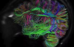 Сон помогает мозгу забывать ненужные воспоминания