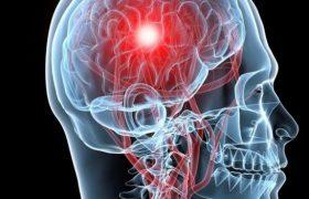 Названы самые эффективные способы предотвратить инсульт
