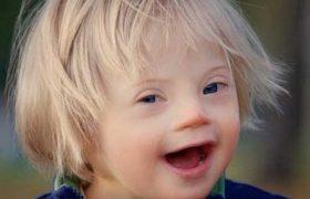Ученые из США: мы наткнулись на золотую жилу в лечении синдрома Дауна