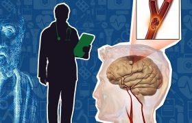 Инсульт: причины, последствия и новейшие способы реабилитации
