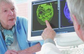 Болезнь Альцгеймера: как распознать деменцию и можно ли вылечить?