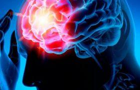 Симптомы инсульта, которые возникают за месяц