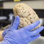 Лекарство остановило болезнь Альцгеймера у мышей
